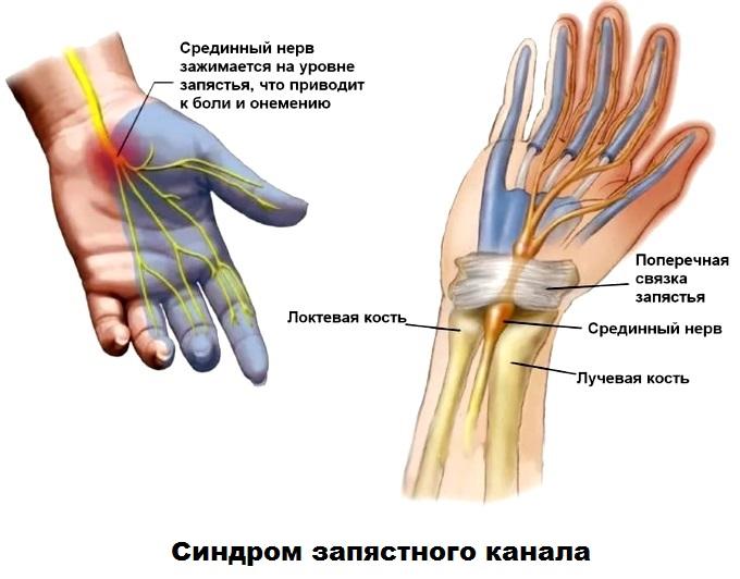 Причины онемения рук после пробуждения